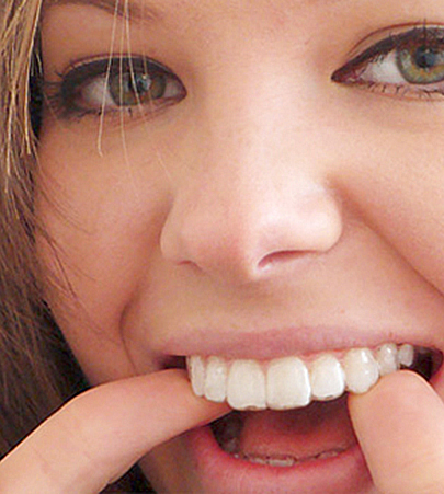 Caring for your Invisalign braces